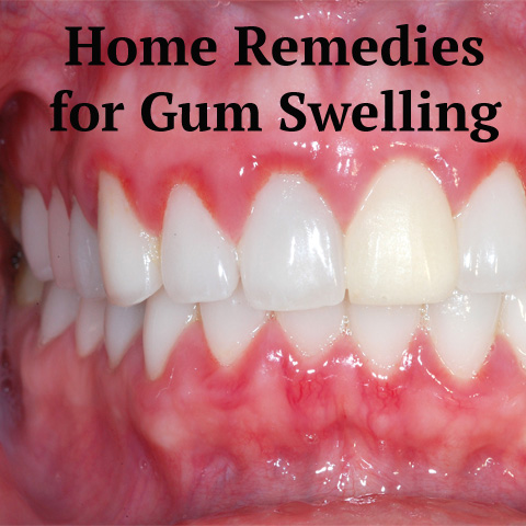 Top 10 Home Remedies for Sore Gums