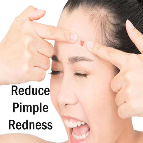 How to Reduce Pimple Redness Overnight?