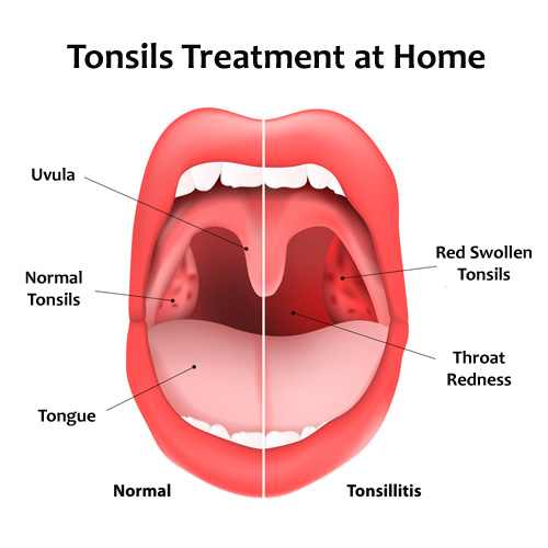 Tonsils Treatment at Home