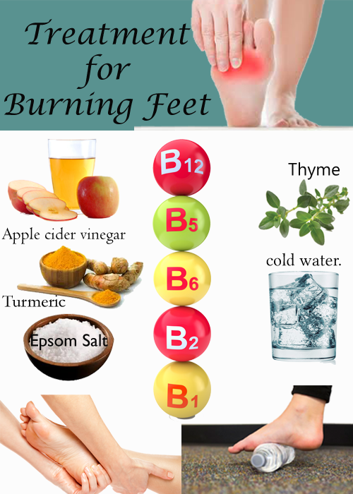 Treatment for Burning Feet