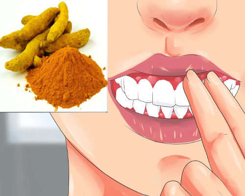 Home Treatment for gum Swelling with Turmeric