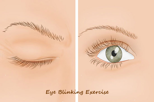 remedies for dry eyes natural