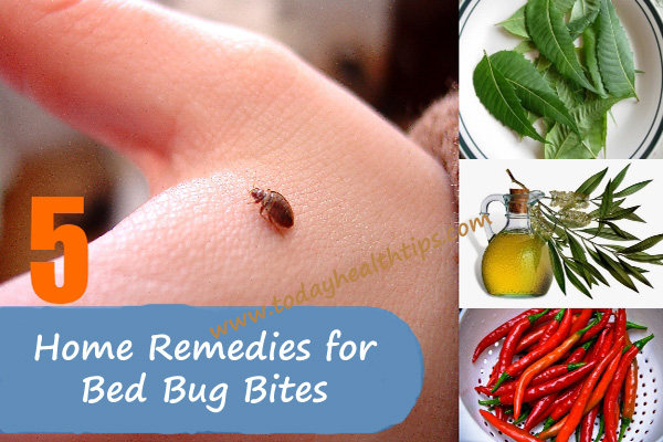 for home hrfnd bed bugs bites remedies bug
