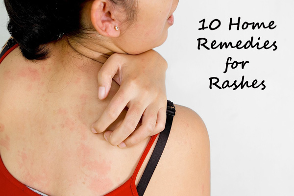 home remedies for skin rashes on legs