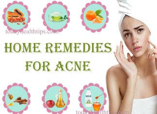 Acne treatment at home