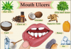 Best home remedy for mouth sores
