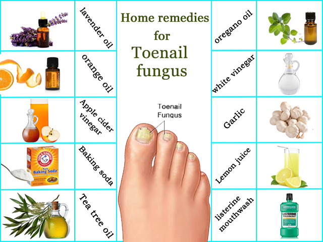 Home remedies for toenail fungus | Onychomycosis Treatment at Home