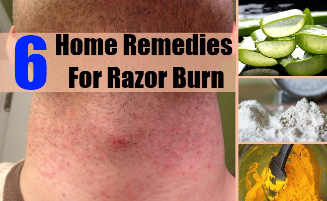 How To Get Rid Of Razor Bumps Severe Razor Bumps Treatment